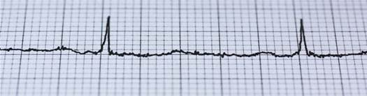 Heart attacks seem more common after extreme temperature changes